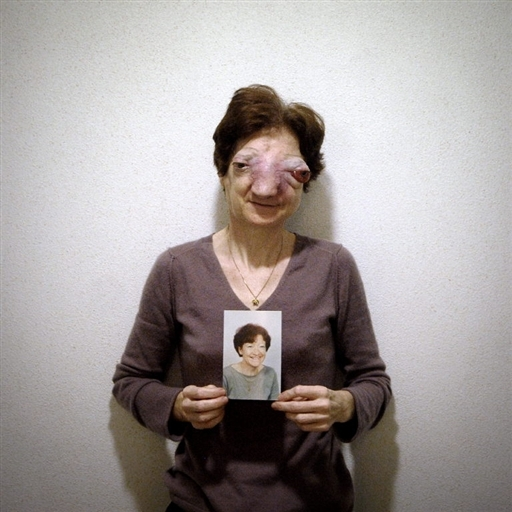 Chantal Sébire 22shxf